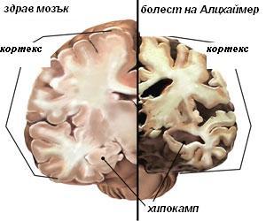 Грижи за близък с болестта на Алцхаймер